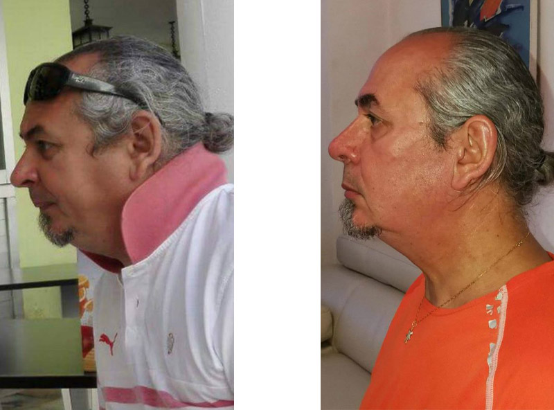 Face Yoga Passion - Before-After