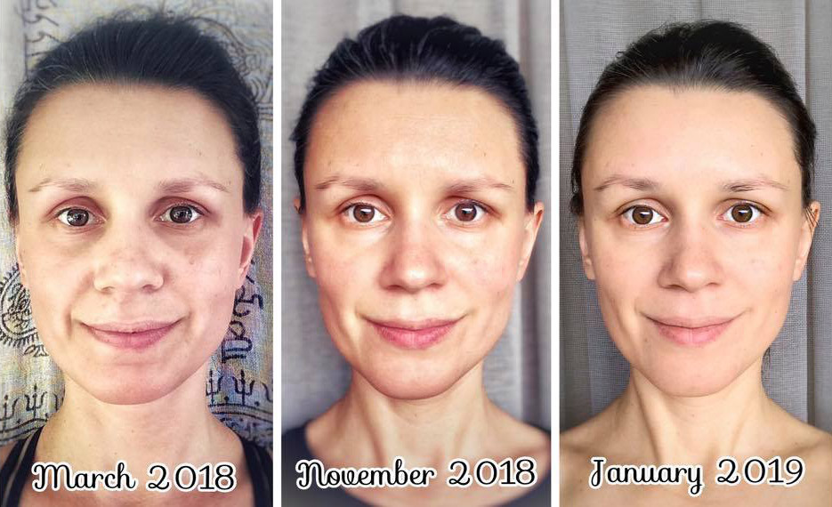 Face Yoga Results